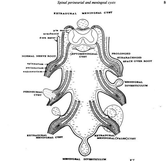 Tarlov's classification of intraspinal meningeal cysts ...