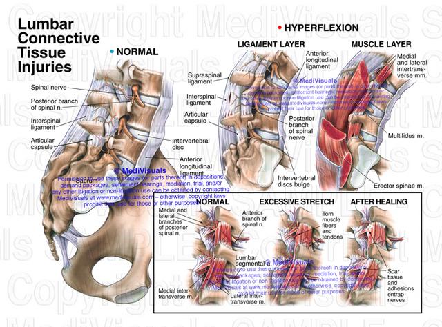 Back Sprain
