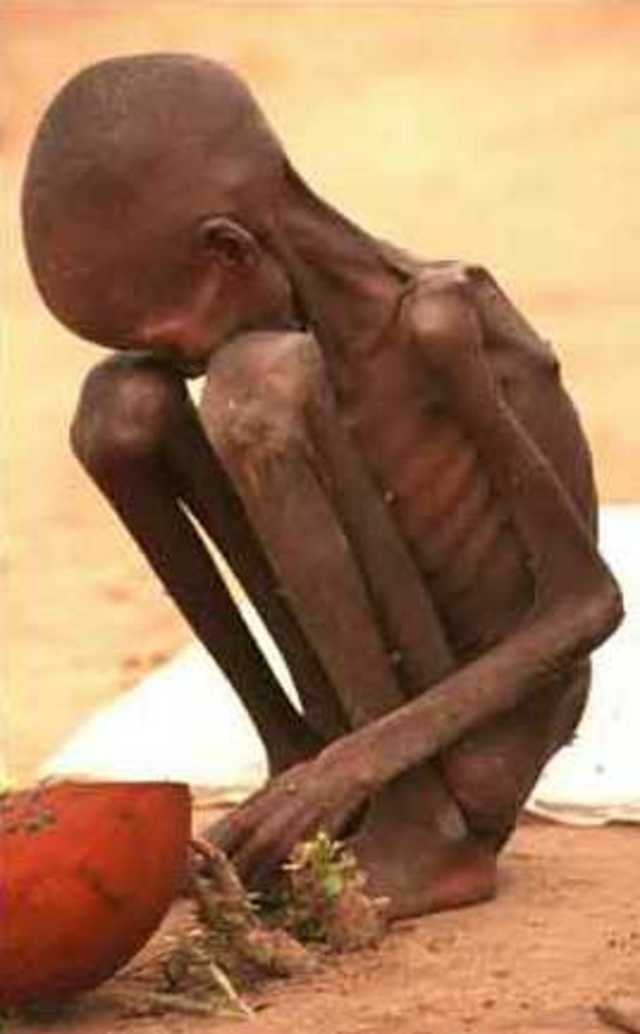 African children, Hunger no more! · Causes