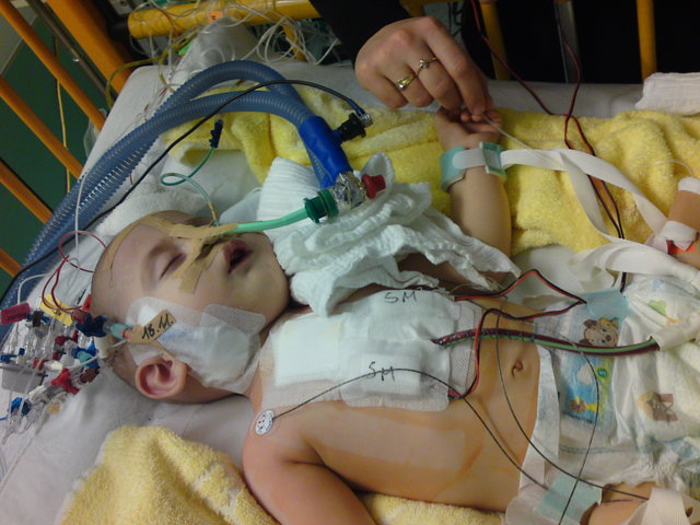 Salvati Institutul de Boli Cardiovasculare Targu Mures, reporniti operatiile pe cord la copii si beb
