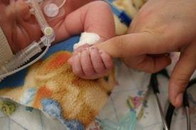 Keep NICU Families Close to their Premature Infants